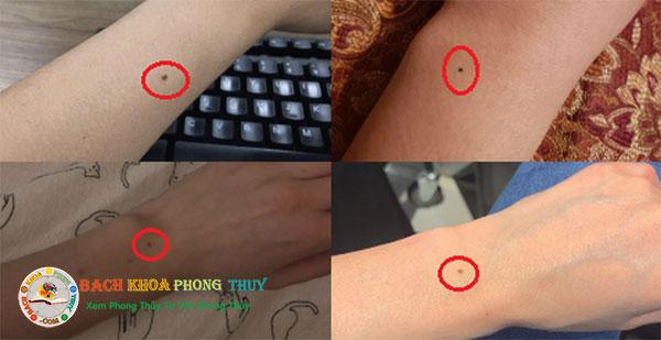 Nốt ruồi ở cổ tay, cổ chân của phụ nữ và nam giới có ý nghĩa gì?