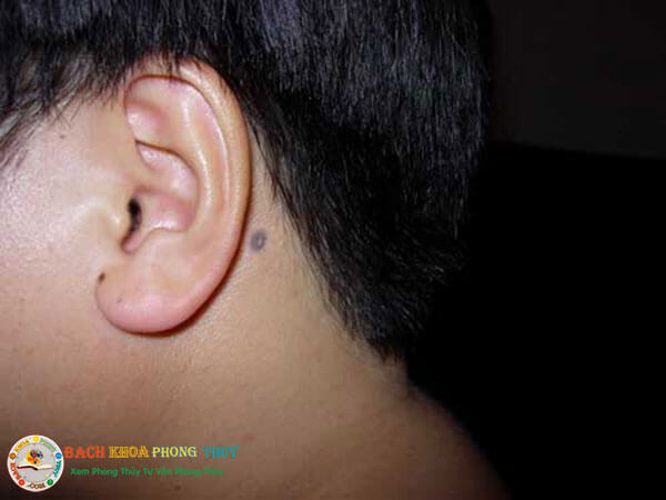 Ý nghĩa vị trí nốt ruồi ở cổ sau tai