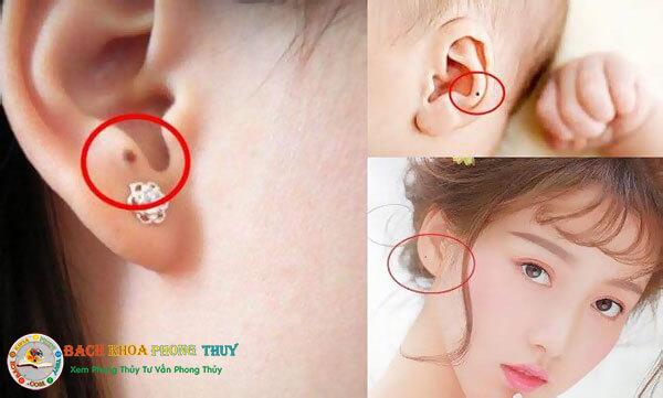 Nốt ruồi ở tai phụ nữ, đàn ông bên trái, phải có ý nghĩa gì?