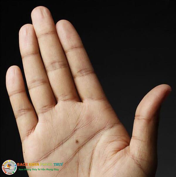 Nốt ruồi trong lòng bàn tay phải nữ giới và nam giới