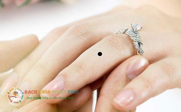 Nốt ruồi ở ngón tay đeo nhẫn (ngón tay áp út)