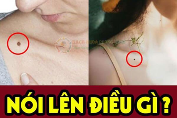 Nốt ruồi ở xương quai xanh có ý nghĩa gì?